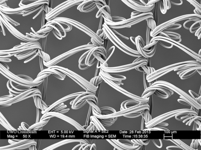 Fascinerende electronenmicroscoop foto's
